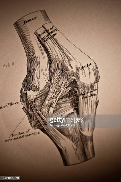 A medical drawing from 'A System of Human Anatomy Including its Medical and Surgical Relations' illustrates the muscular system of the human knee...