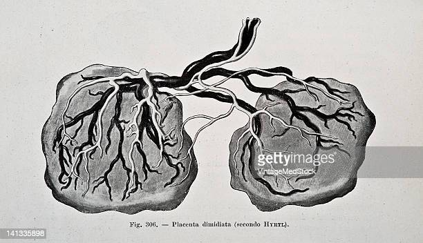 A medical drawing from 'Trattato Completo di Ostetricia' illustrates a double placenta 1905