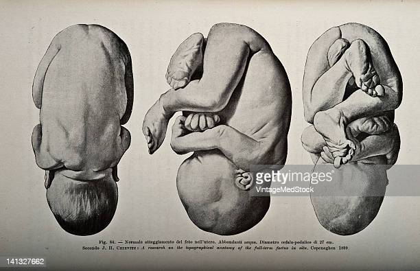 A medical drawing from 'Trattato Completo di Ostetricia' illustrates the normal fetal position from three different angles 1905