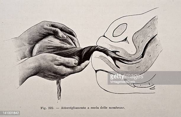 A medical drawing from 'Trattato Completo di Ostetricia' illustrates the third stage of labor expelling the placenta out of the birth canal 1905
