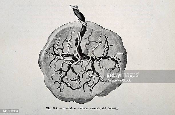 A medical drawing from 'Trattato Completo di Ostetricia' illustrates the human placenta 1905