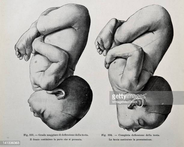A medical drawing from 'Trattato Completo di Ostetricia' illustrates two slightly different fetal positions 1905