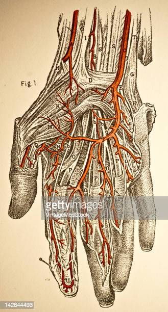 A medical engraving from 'A System of Human Anatomy Including its Medical and Surgical Relations' illustrates the arteries of the human hand 1883