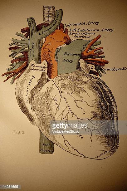A medical engraving from 'A System of Human Anatomy Including its Medical and Surgical Relations' illustrates the human heart 1883