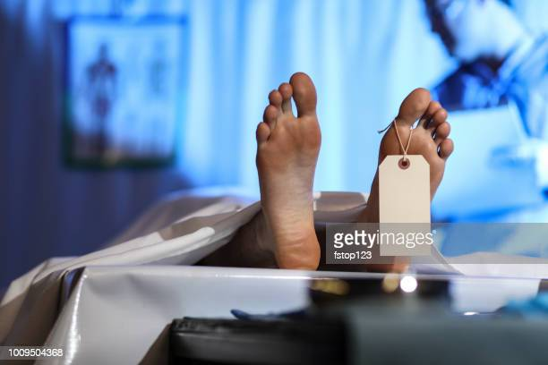 medical examiner with corpse in morgue. - dead stock pictures, royalty-free photos & images