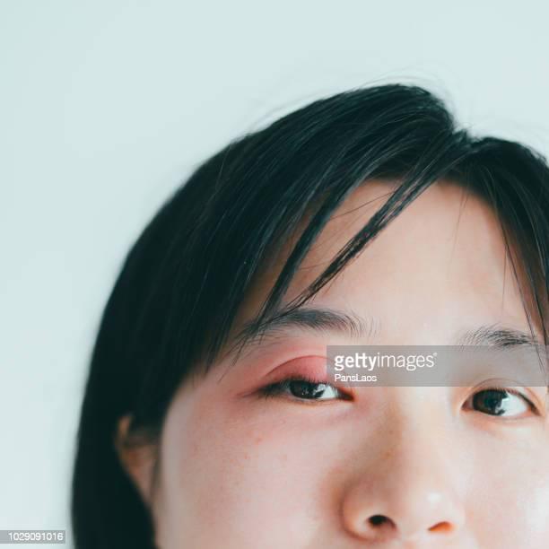 medical hordeolum ill eyes