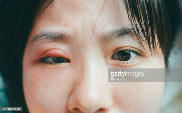 medical hordeolum ill eyes - abscess stock photos and pictures