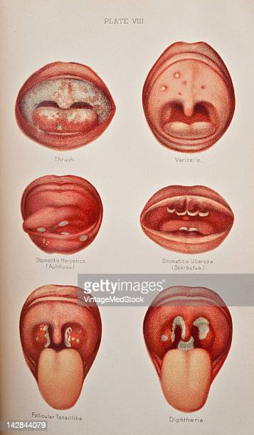 A medical illustration from 'A System of GenitoUrinary Diseases' depicts several dangerous infections Thrush Varicella Stomatitis Herpetica Scorbutus...