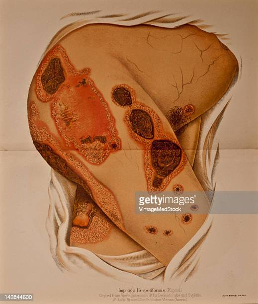 A medical illustration from 'Annual of the Universal Medical Sciences' depicts Impetigo Herpetiformis 1888 The illustraion is copied from Wilhelm...