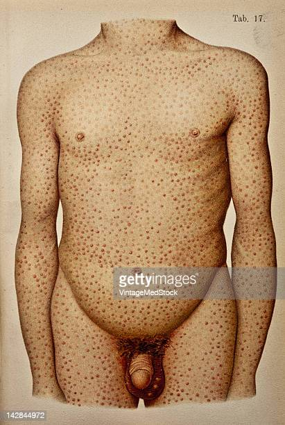 A medical illustration from 'Bilze De Nieuwe Natuurgeneeswijze' depicts a severe case of syphilis 1923