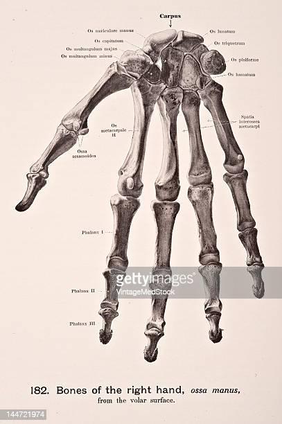 Medical illustration from 'Hand-Atlas of Human Anatomy, volume 1' shows the bones of the right hand, ossa manus, from the volar surface, 1923.
