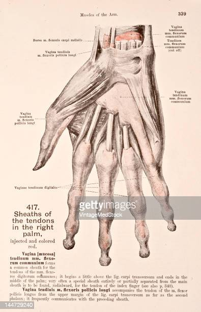 A medical illustration from 'HandAtlas of Human Anatomy volume 2' shows the sheaths of the tendons in the right palm 1923
