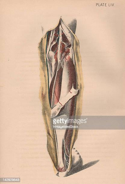 A medical illustration from 'Illustrations of Dissections' shows an autopsy of the human leg 1882 Muscles major nerves and arteries are visible