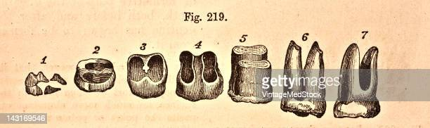 A medical illustration from 'Quain's Elements of Anatomy Eighth Edition VolII' depicts different stages in the formation of a molar tooth with two...