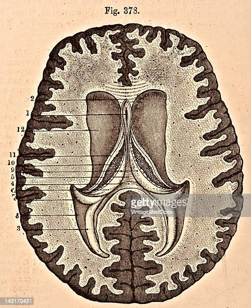 A medical illustration from 'Quain's Elements of Anatomy Eighth Edition VolII' depicts the horizontal section of the brain 1876 Visible are the...