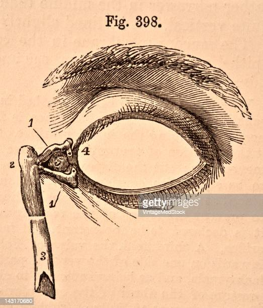 A medical illustration from 'Quain's Elements of Anatomy Eighth Edition VolII' depicts the front of the left eyelids with the lachrymal canals and...
