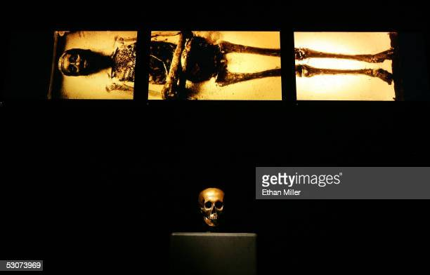 Medical imagery of Tutankhamun is shown above a replica of King Tut's skull while on display during the 'Tutankhamun And The Golden Age Of The...
