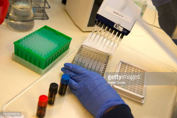 A medical laboratory scientist runs a clinical test in the Immunology lab at UW Medicine looking for antibodies against SARSCoV2 a virus strain that...