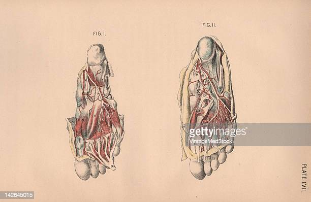 A medical lithograph from 'Illustrations of Dissections' illustrates autopsy of the human foot 1882 Major nerves muscles and blood vessels are visible