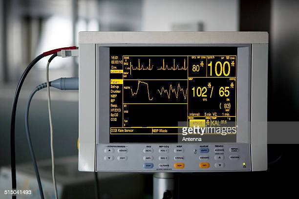 A medical monitor displaying vital signs