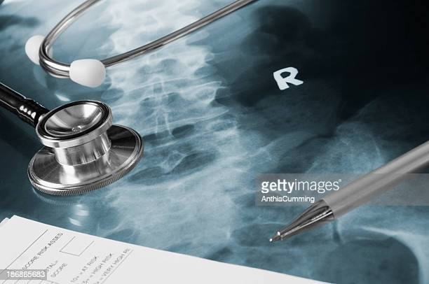 medical notes and stethoscope on human xray - pelvis stock pictures, royalty-free photos & images