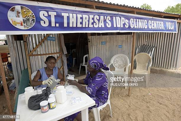 Medical officers wait to attend to sick displaced persons at StTheresa's IDPs Clinic Centre in Yola Adamawa State in northern Nigeria on June 19 2015...