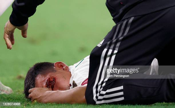 Medical officials attend to Hirving Lozano of Mexico after being injured in the first half against Trinidad and Tobago in the 2021 CONCACAF Gold Cup...