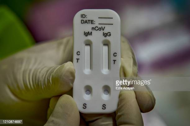A medical personnel shows a rapid antibody test kit for COVID19 at a school converted into a mass testing facility on April 24 2020 in Manila...