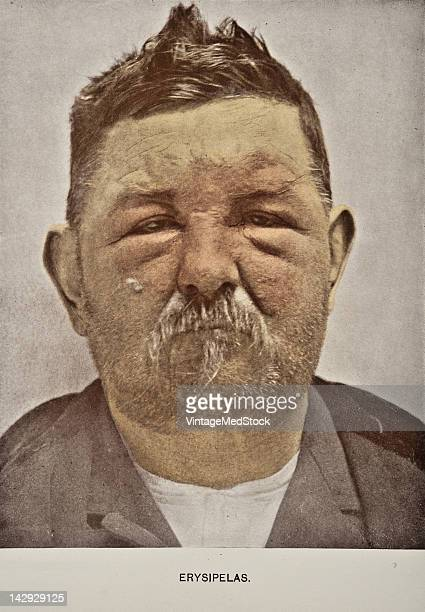 A medical photograph from 'Photographic Atlas of the Diseases of the Skin' illustrates a case of Erysipelas most common among the eldery children or...