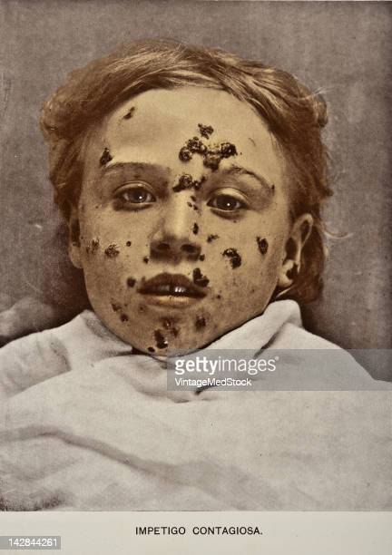 A medical photograph from 'Photographic Atlas of the Diseases of the Skin' illustrates Impetigo Contagiosa 1903