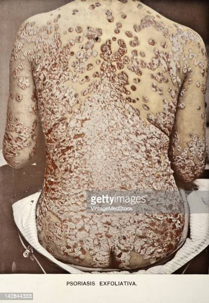 A medical photograph from 'Photographic Atlas of the Diseases of the Skin' illustrates psoriasis 1903