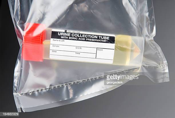 medical sample of urine - urine sample stock photos and pictures