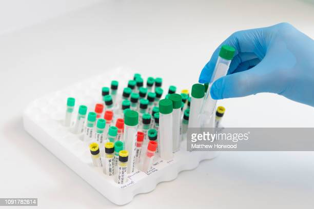 Medical samples in vacutainer tubes held by a laboratory technician in a medical laboratory on December 5 2018 in Cardiff United Kingdom
