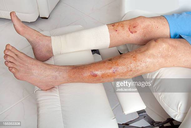 medical: senior with thin skin injury - swollen stock photos and pictures