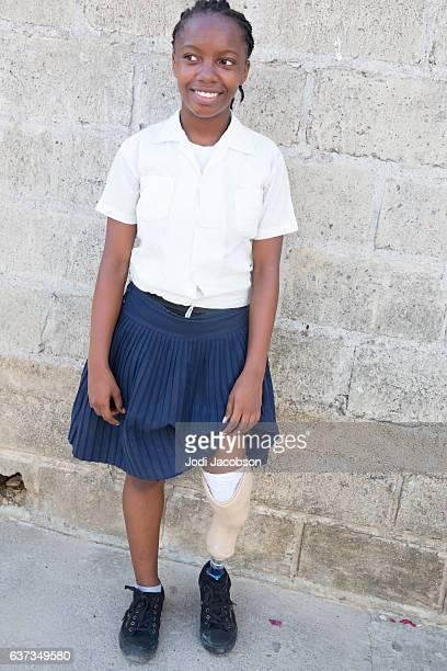 Medical Series:Honduran High School girl has prosthetic limb