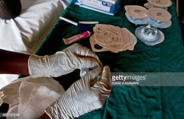 Medical staff prepare to fit a patient with a non-surgical circumcision device called Prepex in Mukono on May 12, 2014. The simple device -- two...