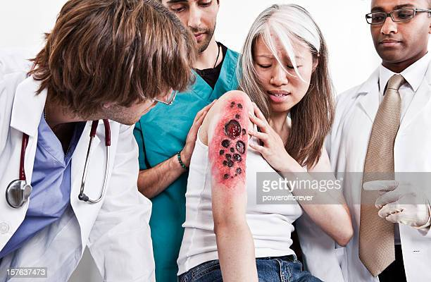 medical team examining burn victim - victim stock pictures, royalty-free photos & images