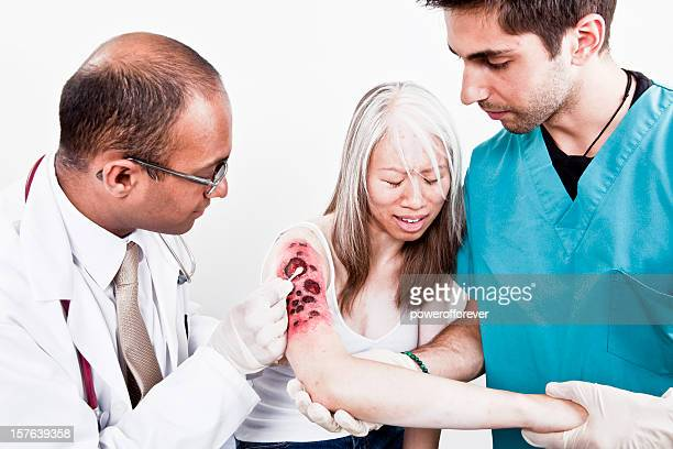 medical team treating burn victim - burns victims stock pictures, royalty-free photos & images