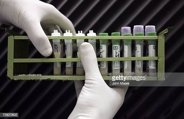 A medical technician handles HIV positive samples during testing at the Pakistan Institute of Medical Sciences on April 18 2006 in Islamabad Pakistan...