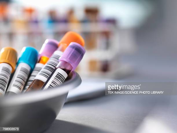 medical testing - urine sample stock photos and pictures