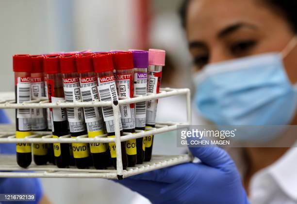 Medical worker at Magen David Adoms Blood Services holds blood samples donated by recovered novel coronavirus patients for plasma extraction,...