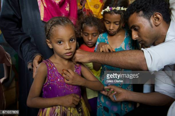 A medical worker measures young patients in the small rural village of AnNassiri located about 60 km from Al Hudaydah In Yemen one in every two...