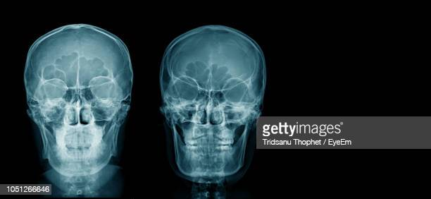 medical x-ray image of human head - radiographie photos et images de collection