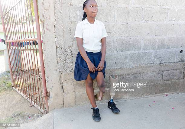 Medical:Honduran teenage girl has prosthetic limb due to birth defect