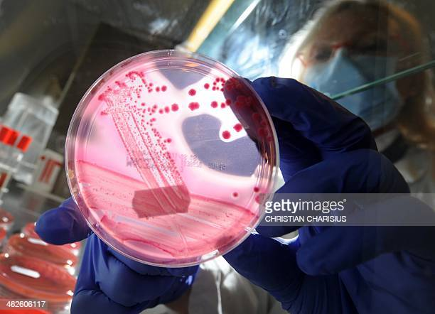 Medicaltechnical assistant Brigitte Weiss holds a petri dish with a culture medium and bacterial strains of enterohaemorrhagic E coli at the UKE...