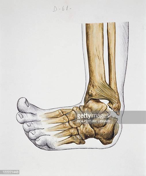 Medicine - Anatomy - Pathology - Musculoskeletal system - Joints - Bones. Tibio-tarsal sprain. Drawing.