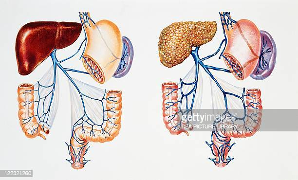 Medicine Anatomy Pathology Portal vein system Normal portal circulation compared with portal circulation in presence of hepatic cirrhosis Drawing