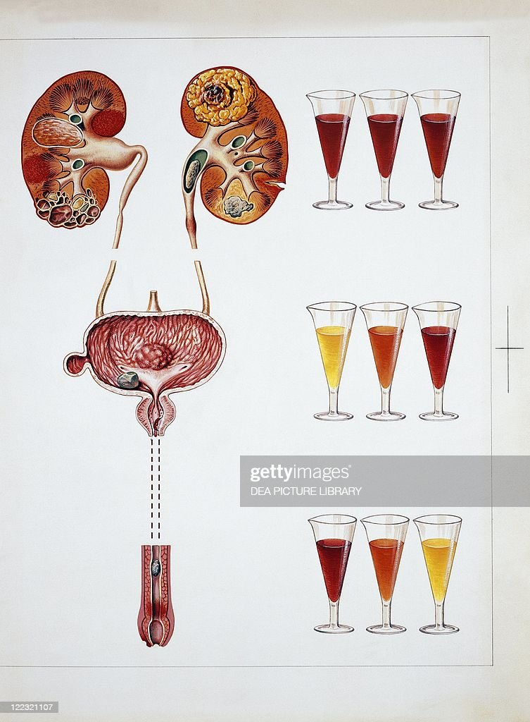 Medicine Anatomy Urinary System Hematuria Presence Of Red
