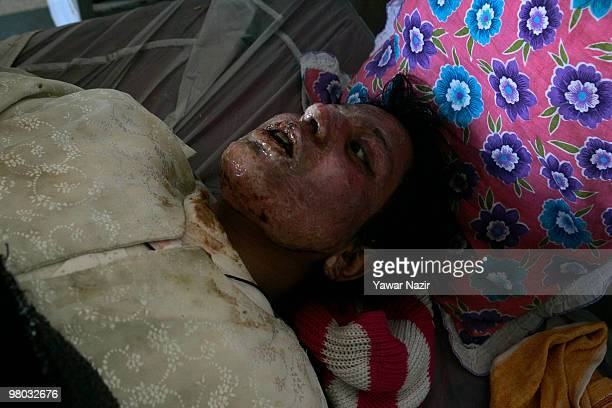 Mehmooda who attempted suicide by pouring kerosene oil on her body has been hospitalized with 55% burn injuries rests in a burn ward at the SMHS...