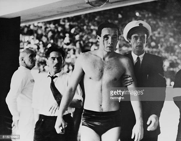 Injured In Water Polo Brawl Hungarian Ervin Zador with blood pouring from a cut eye is led to a casualty room for attention for the injury which he...